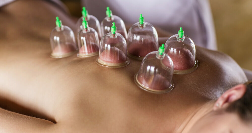 Women relaxing with cupping after acupuncture treatment