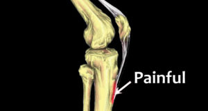 knee pain for osgood schlatter
